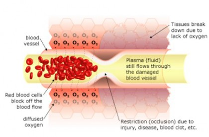 restricted blood flow